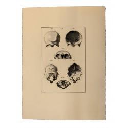 Bones. IV. From the bones of the head: coronal